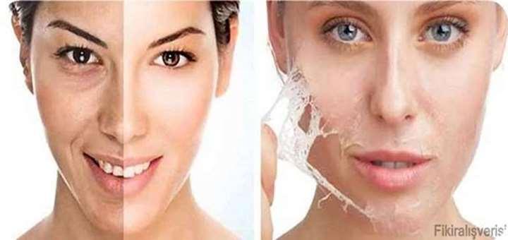 isilti bir cilde sahip olmak