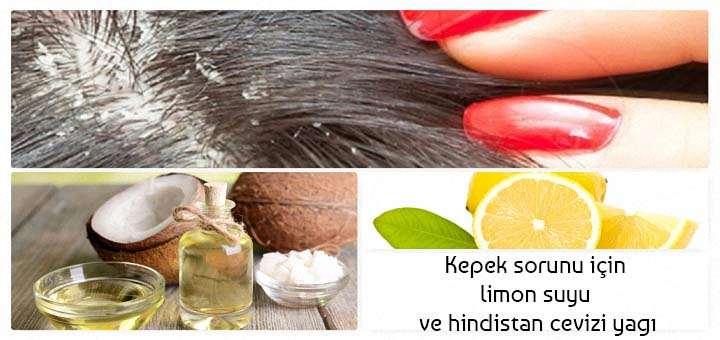kepek sorunu limon suyu ve hindistan cevizi yağı